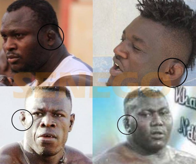 Lambi demb - Le «ndenguégne» ou les oreilles en champignon : maladie naturelle ou dopage ?